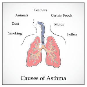 medical illustration showing the causes of asthma