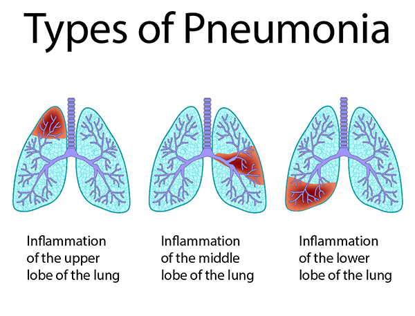 medical illustration showing pneumonia | Johns Creek Family Medicine